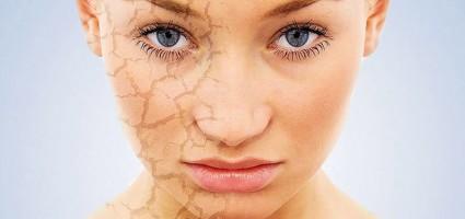 Как спасти сухую кожу