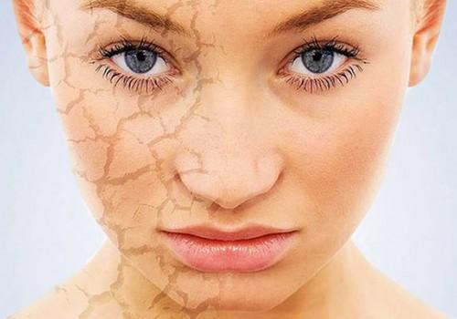 Как спасти сухую кожу>