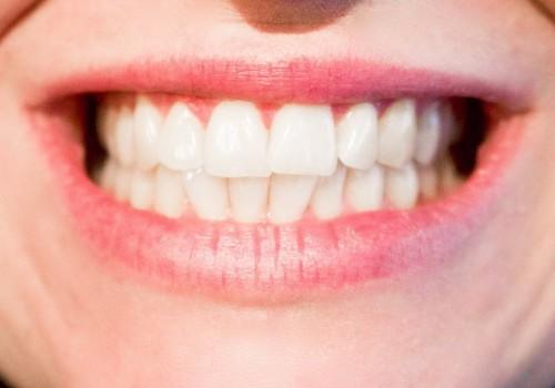 Дорогая или дешевая зубная паста: стоит ли переплачивать за бренд и красивую упаковку >